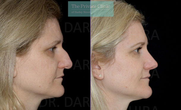 Preservation Rhinoplasty results