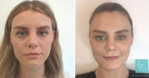 Before and after photos of patient having had dermal filler tear trough treatment with eyes looking brighter and under eye darkness reduced