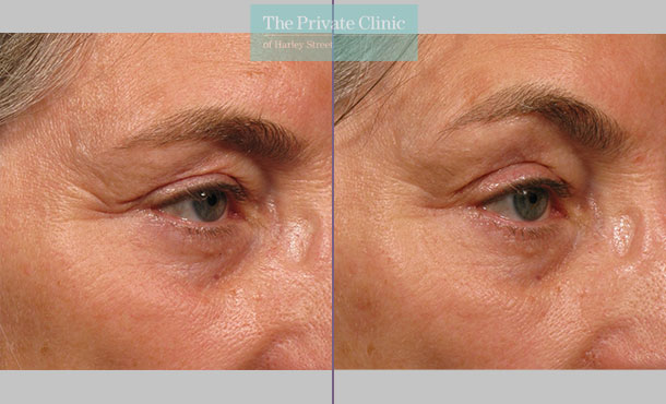Ultherapy treatment before and after results showing a browlift