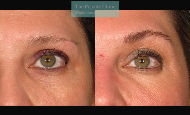 Ultherapy browlift treatment before and after photos showing lifted brows