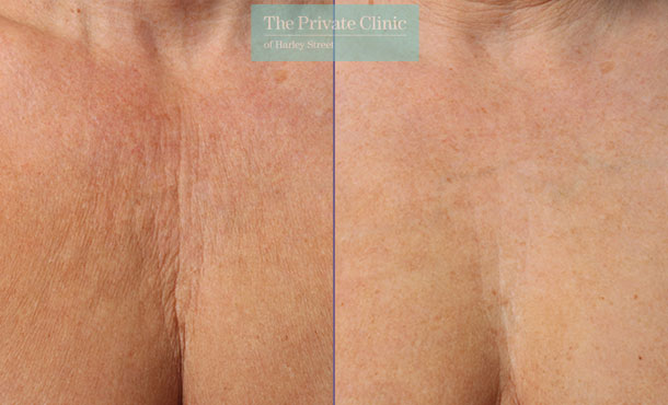 Ultherapy before and after results showing smoother skin on the decolletage area
