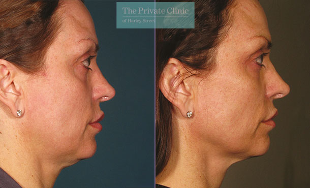 Ultherapy before and after photo showing a more defined jawline and lifted face