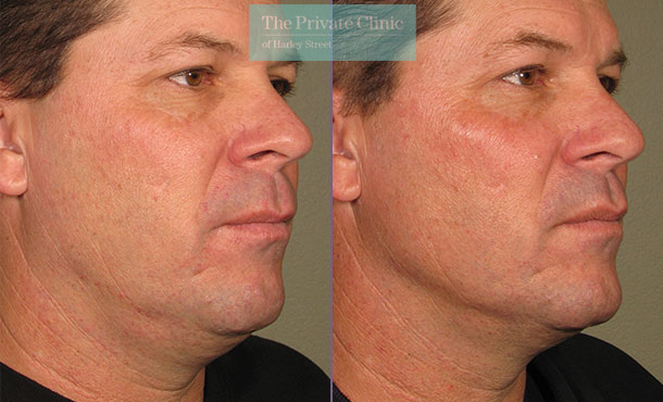 Ultherapy treatment to male face before and after photos showing a more defined jawline