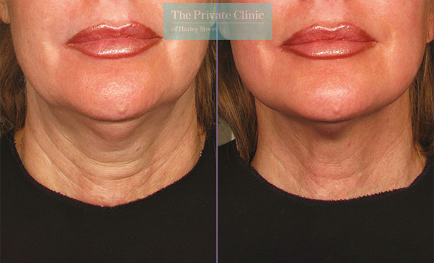Ultherapy treatment before and after results showing a reduction of sagging skin on the neck