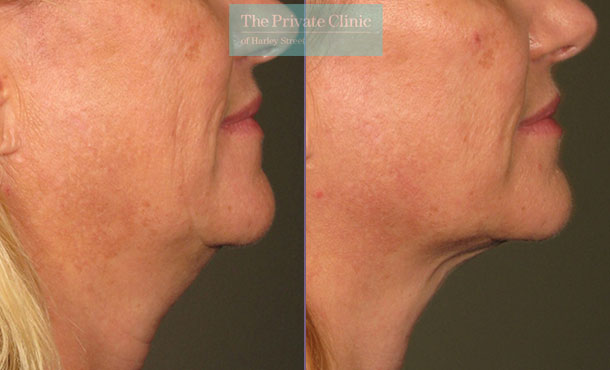 Ultherapy treatment before and after results showing reduction in jowls
