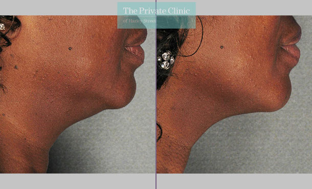 Ultherapy treatment before and after results showing reduction in jowls and more defined neck