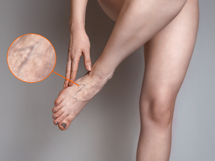 photo showing varicose veins in the feet with a zoomed in circle