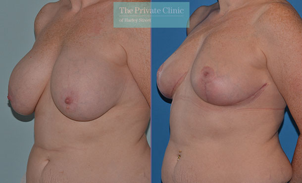 Breast Auto Augmentation before and after photo uk