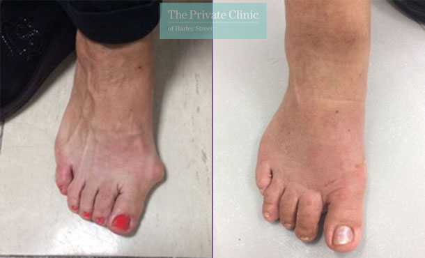 before and after pictures of minimally invasive bunion surgery