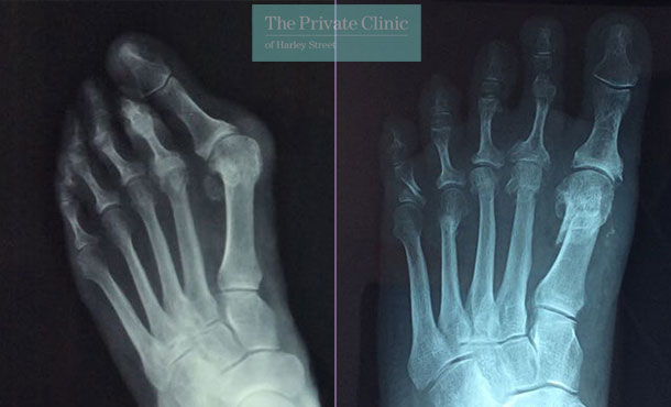 Before and after photos bunion surgery x-ray UK 2021