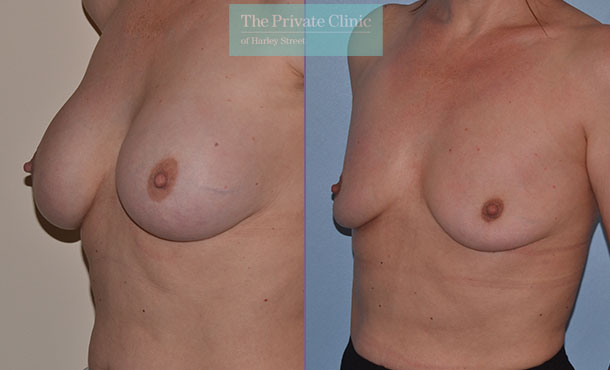 Breast Implant Removal before and after photos uk