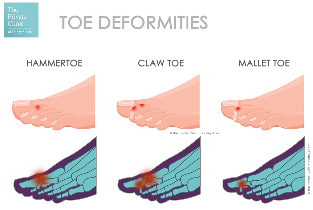 What are hammer, claw, and mallet toes