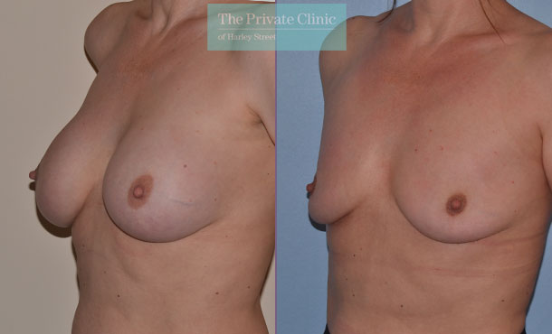 Breast implant removal results