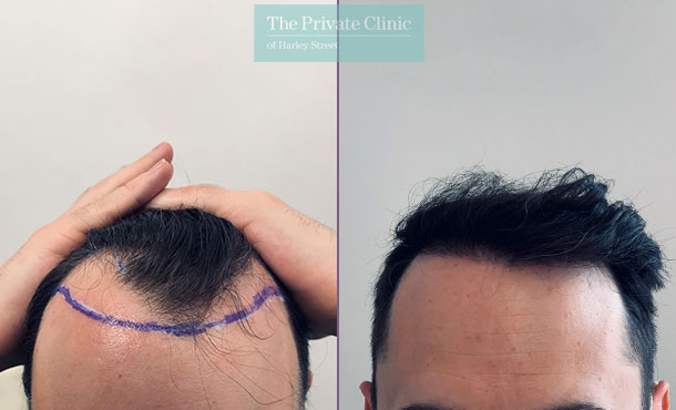 fue-hair-transplant-before-after-photos-results-front-dr-furqan-raja-009FR