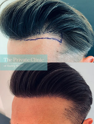fue-hair-transplant-before-after-photos-results-side-dr-furqan-raja-006FR
