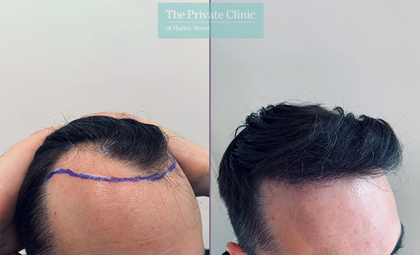 fue-hair-transplant-before-after-photos-results-side-dr-furqan-raja-009FR