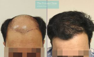 FUE Hair Transplant by Mr Michael Mouzakis before after photo result