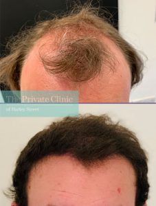 FUE Hair Transplant by Dr Furqan Raja before after photo result