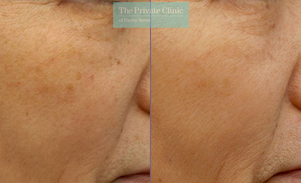 ipl photorejuvenation treatment before and after images showing reduction in pigmentation and sun spots