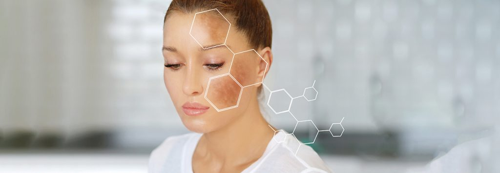 Best treatment options for melasma and hyperpigmentation on face