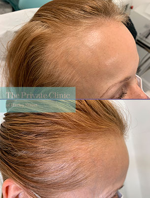 non-surgical-female-hair-loss-treatment-before-after-results-photos-leftside-dr-furqan-raja-008FR