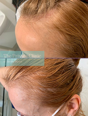 non-surgical-female-hair-loss-treatment-before-after-results-photos-rightside-dr-furqan-raja-008FR