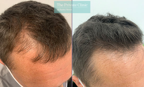 non-surgical-hair-loss-treatment-before-after-results-photos-dr-furqan-raja-007FR