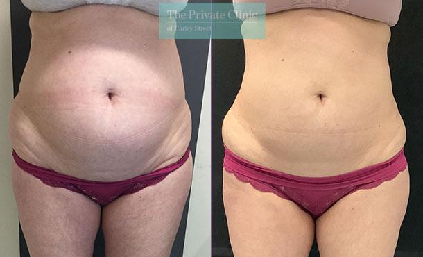 coolsculpting-abdomen-tummy-fat-before-after-fat-freezing-results-emma-andrews-001EA