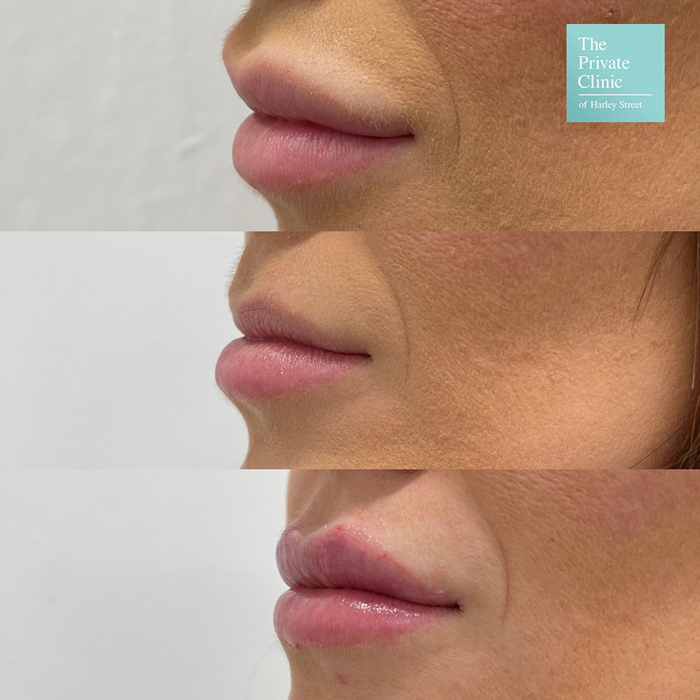 Dermal Filler removal before and after photo