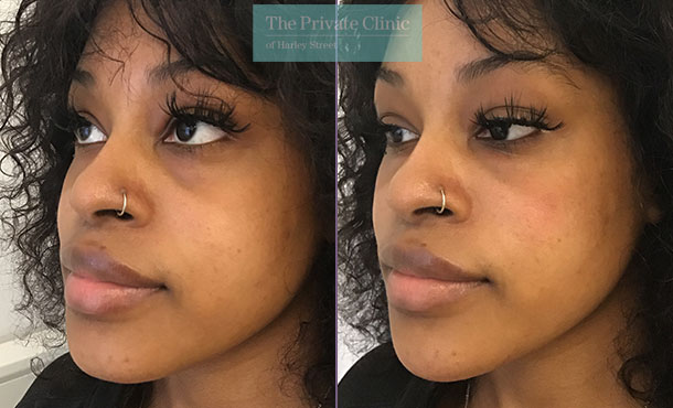 Chin Fillers before and after photo