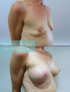 breast augmentation after volume loss before after photo