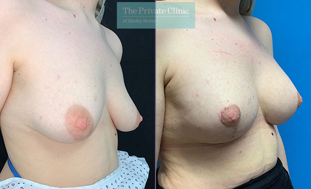 Breast Uplift with Implants before after photo