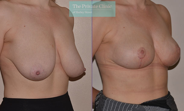 sagging breast fix surgery before after photos UK