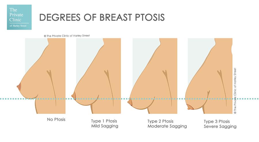 Breast ptosis degree