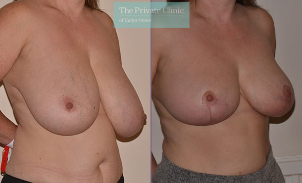 large breasts reduction mammaplasty before after photo uk