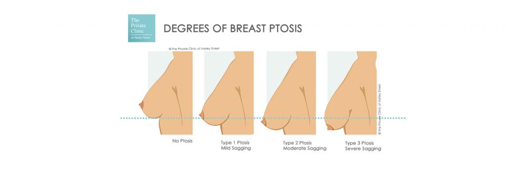 sagging breast fix surgery