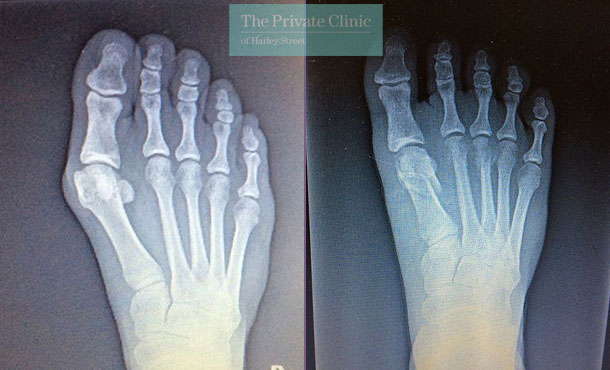Bunion Surgery before after x-ray photo
