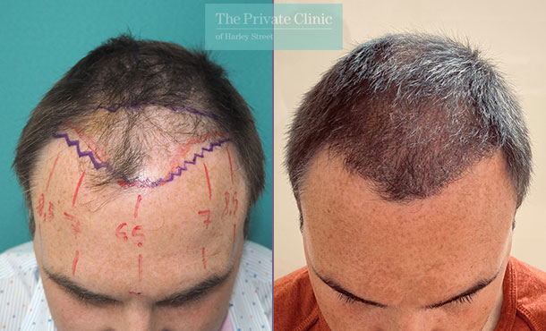 fue-hair-transplantation-before-after-photo-results-mr-michael-mouzakis-025MM