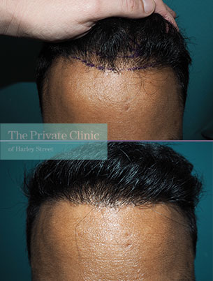 fue-hair-transplantation-before-after-photo-results-mr-michael-mouzakis-026MM