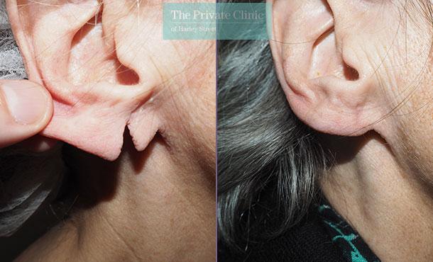 split-earlobes-repair-before-after-photos-results-mr-michael-mouzakis-003P-MM