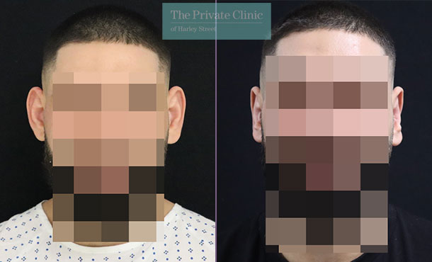 Otoplasty before and after results