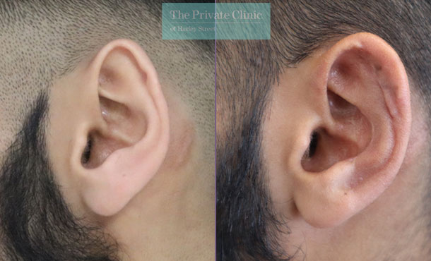 Ear reconstruction before and after results
