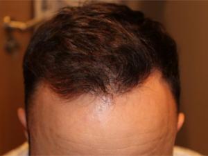 5 months after hair transplantation procedure