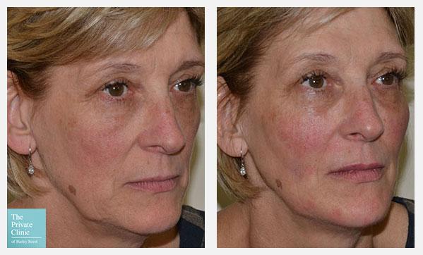 8 point fluid facelift dermal filler before after results