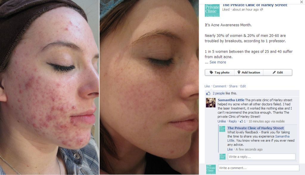 N-Lite Laser Acne Treatment Before and After photo