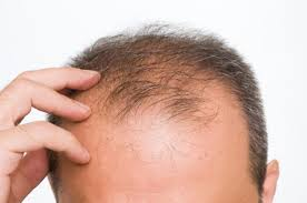 Hair loss: can it be permanently solved by transplants?