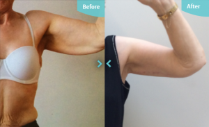 Arm Lift before and after results The Private Clinic