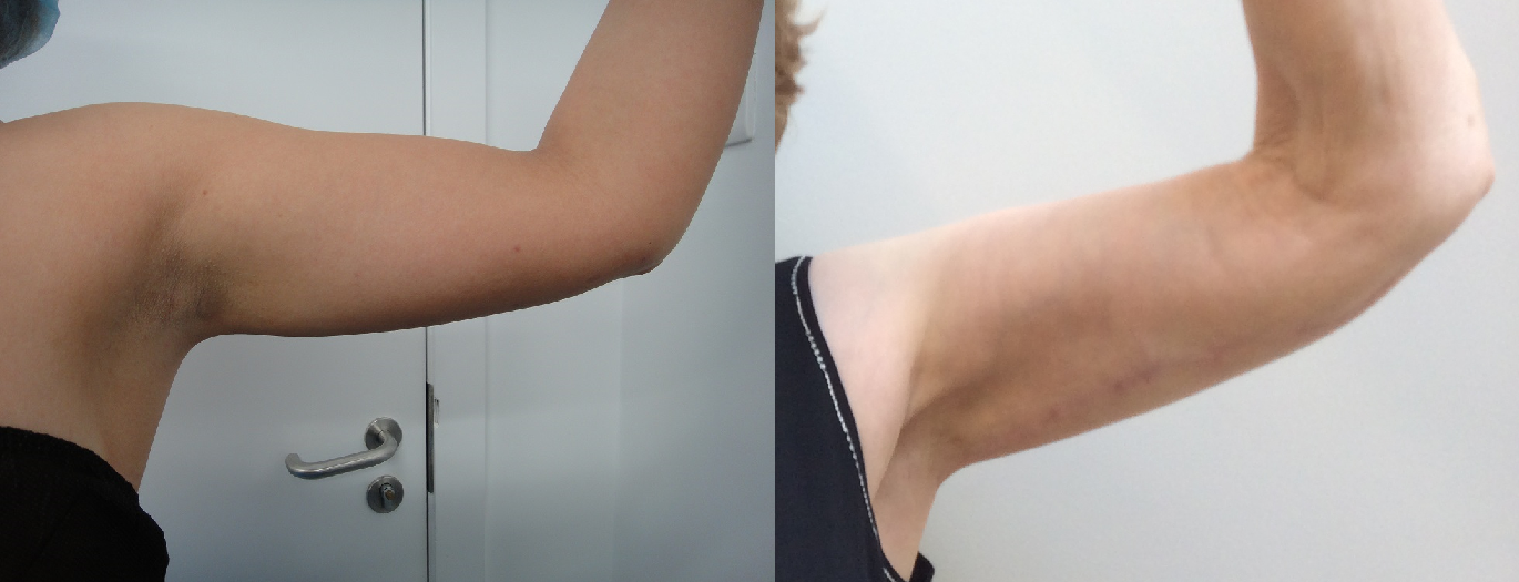 Arm lift and MicroLipo arm before after results