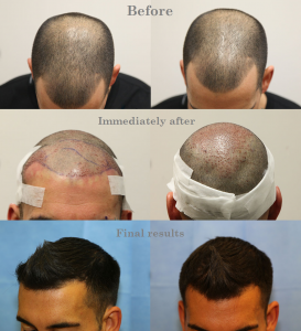 Before, during and after Hair Transplantation at The Private Clinic.