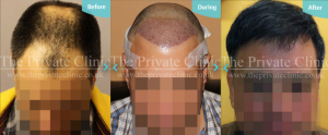 Before, immediately after and final hair transplant results by The Private Clinic's Dr Raghu Reddy
